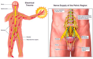 Electrical Shock Trauma Causing Damage to Reproductive Nerves