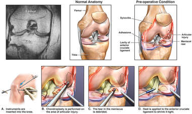 Post-accident Internal Derangement of Right Knee