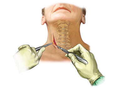 Neck Incision – Older Female