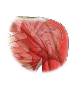 Supraspinatus Tear in the Shoulder