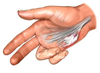 Adhesions of Palmar Aponeurosis : Dupuytren's Contracture