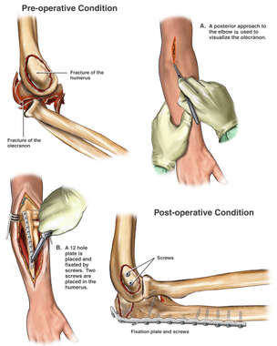 Right Elbow Fracture with Surgical Fixation