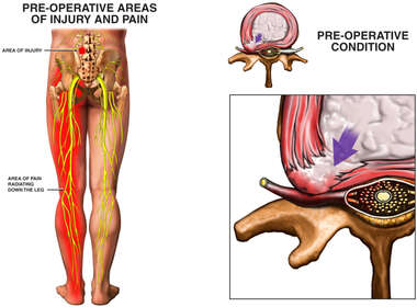 Pre-operative Areas of Lumbar Spine Injury and Left Side Radiculopathy Pain