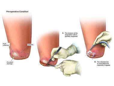 Incision and Drainage of Abscess
