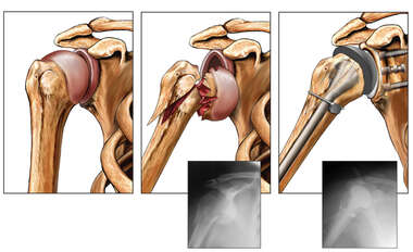 Right Shoulder Fracture/dislocation with Total Joint Replacement Surgery