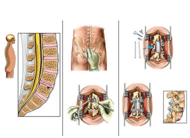 L4-5 Disc Herniation with Discectomy and Fusion Procedures