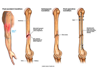 Progression of Right Arm Injury