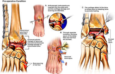 Post-traumatic Right Ankle and Foot Arthritis with Additional Surgical Repairs