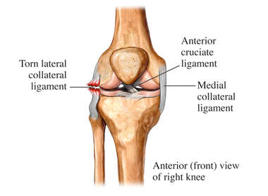 Lateral Collateral Ligament Tear
