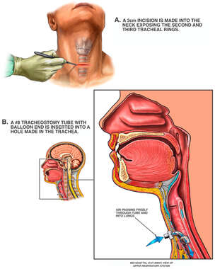 Endotracheal Intubation Placement