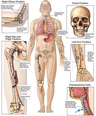 Male Figure with Post-operative Conditions of the Elbow, Thigh, Skull, Wrist and Tracheotomy