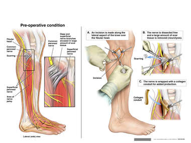 Peroneal Nerve Palsy and Surgical Release