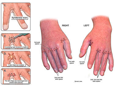 Multiple Z-plasty Procedures on Hands