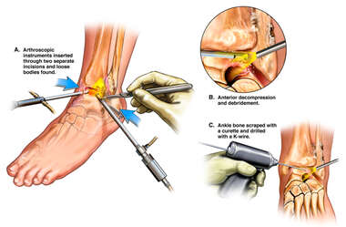 Arthroscopic Surgery of Left Ankle Injuries