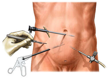 Placement of Laparoscopic Instruments in the Abdomen