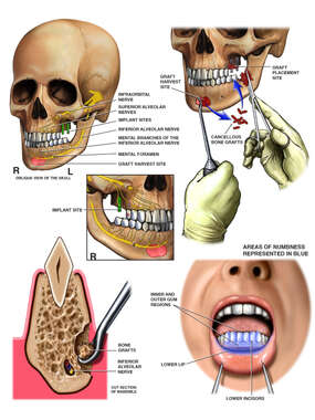 Surgical Placement of Maxillary Implants with Bone Grafting
