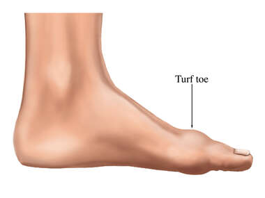Turf Toe Swelling