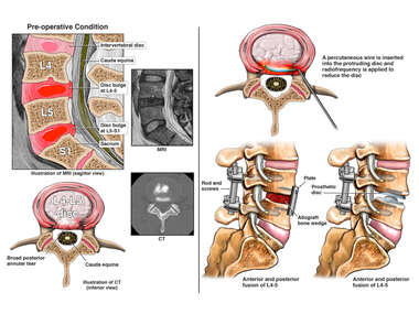 Lumbar Spine Injuries with Multiple Future Surgical Options
