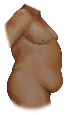 Obese Male Figure