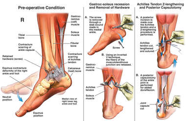 Equinus Contracture of Right Ankle and Surgical Repair