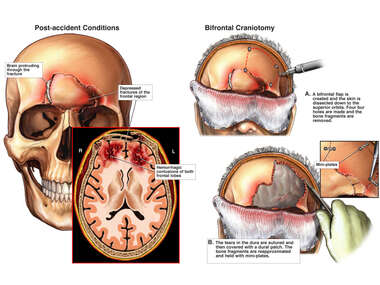 Frontal Skull Fracture with Surgical Repair