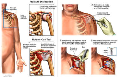 Injuries of the Left Shoulder with Surgical Repairs