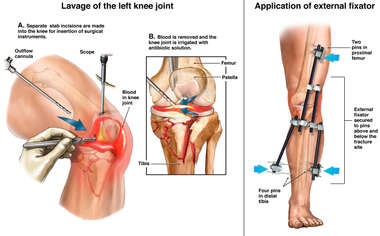 Initial Stabilization and External Fixation of the Left Tibial Plateau