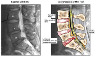 Left-sided Herniation of L5-S1 Intervertebral Disc