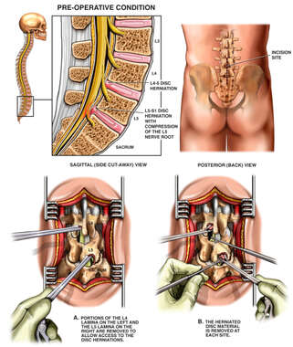 L4-5 Disc Herniation with Subsequent Laminectomy and Discectomy Procedures