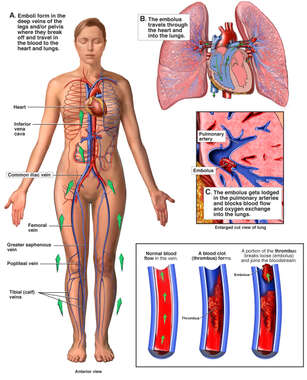 Pulmonary Embolism: Pathway of Embolism to the Heart and Lungs