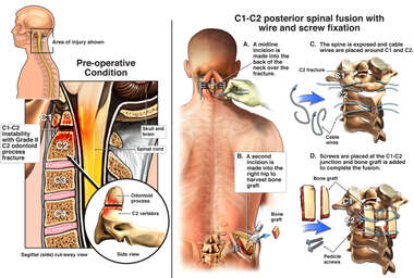 Cervical Spine Fracture with Surgical Fusion