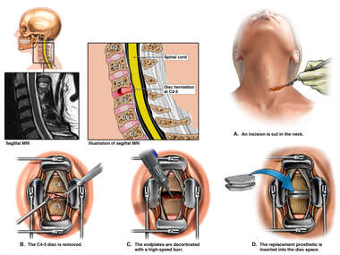 Anterior Cervical Discectomy and Disc Replacement C4-5
