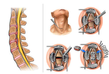 Cervical Spine Injury with Initial Surgical Repair