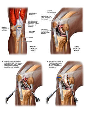 Knee Injury with Subsequent Surgery