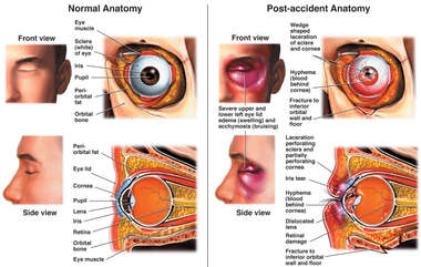 Multiple Left Eye Injuries