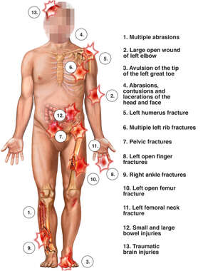 Male Figure with Pain Flares Identifying Multiple Injury Sites to the Head, Shoulder, Elbow, Hip, Thigh, Lower Leg and Ankle