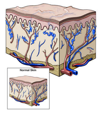 Cross Section of Skin with Varicose Veins