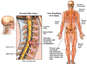 Spinal Cord Damage and C5-6 Disc Herniation Resulting in Chronic Neurological Deficits