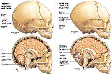 Craniosynostosis with Increased Cranial Pressure and Brain Damage