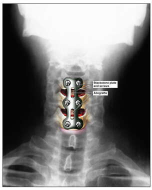 Colorized AP X-Ray Film of the Cervical Spine with Post-operative Fusion Plate