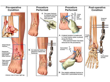 Right Ankle Fractures with Internal and External Fixation