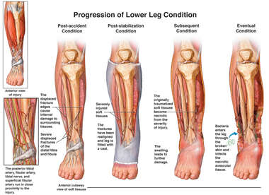Progression of Lower Leg Condition