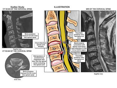 Cervical Spinal Cord Trauma and Cervical Disc Herniation