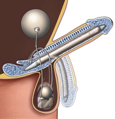 Penile Implant: Lateral Cut-Away View