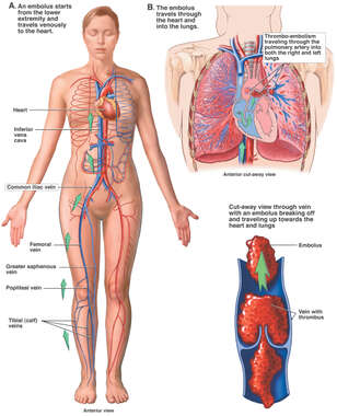 Pulmonary Embolism: Pathway of Embolus to the Heart and Lungs