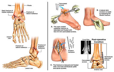 Trimalleolar Ankle Fractures and Surgical Fixation