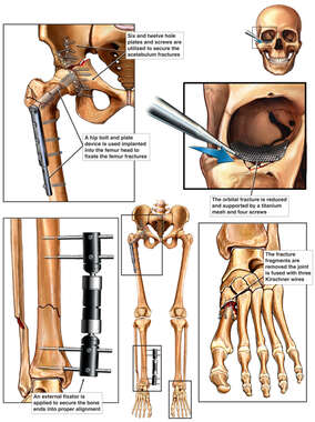 Post-operative Condition of Facial, Hip, Leg and Ankle Surgeries