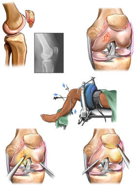Left Knee Injury and Surgical Repair