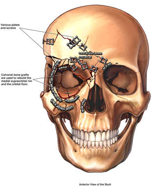 Post-operative Condition of the Skull with Multiple Fixation Plates and Screws