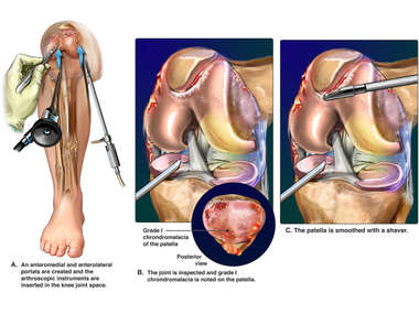 Arthroscopic Repair of Right Patella